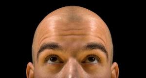 Những gen liên kết với X không liên quan đến giới tính cũng chịu trách nhiệm trong hội chứng hói đầu ở nam giới